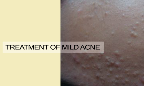 Treatment of Mild Acne