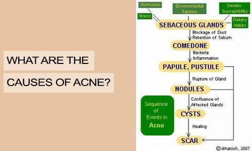 What are the causes of Acne?