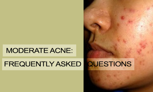 Moderate Acne: Frequently Asked Questions