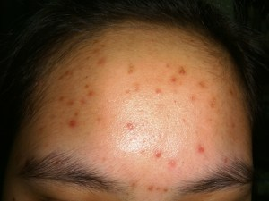Moderate Acne: Type 3