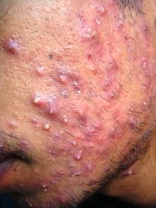 Severe Grade 3 Inflammed Acne