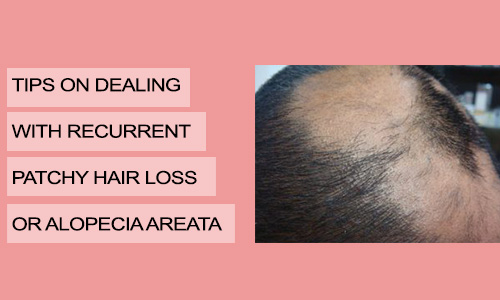 Tips on Dealing with Recurrent Patchy Hair Loss or Alopecia Areata