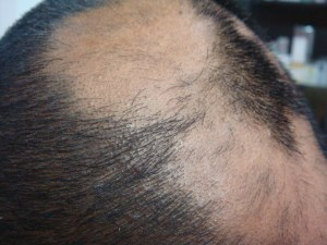 Alopecia areata Causes