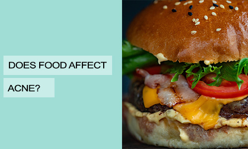 Does Food Affect Acne?