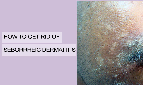How to Get Rid of Seborrheic Dermatitis