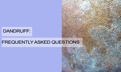 Dandruff: Frequently Asked Questions