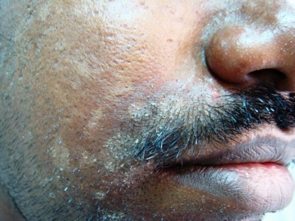 Seborrheic Dermatitis: Severe Dandruff with eczematization
