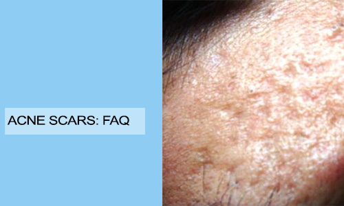 Acne Scars: FAQ
