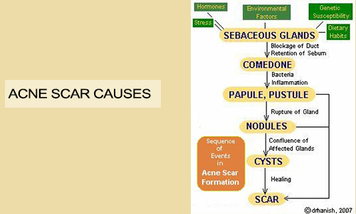 Acne Scar Causes