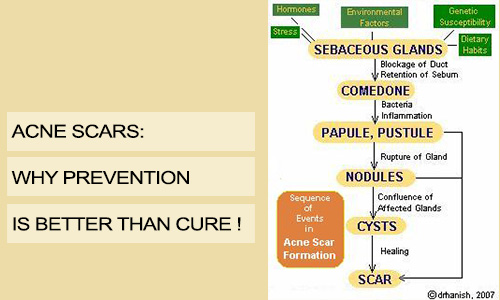Acne Scars: Why Prevention is Better than Cure!