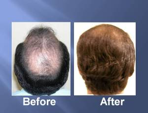 Hair Transplant Before and After Picture