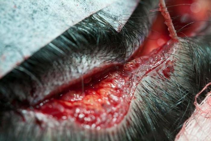 The opening in the back of my head from where the follicles were removed. (Photo by Blanca Stella Mejia)