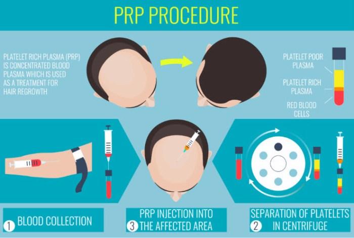 PRP-Platelet- rich- plasma
