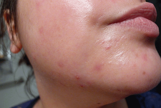 Before - This breakout is a result of some products I've been testing - but NOT Banila Co. It Radiant CC Cream.