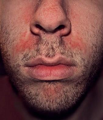 dermatite-ailes-nez