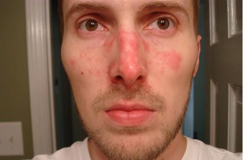 dermatite-que-faire
