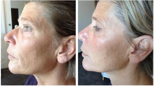 peeling acné avant apres