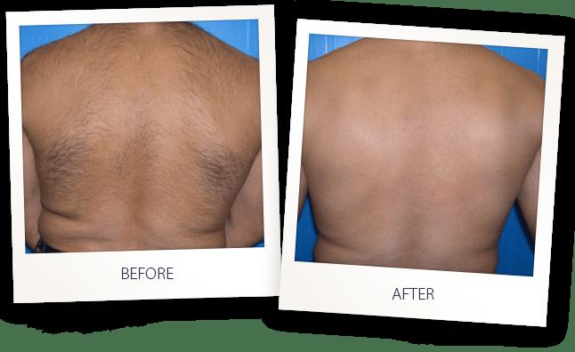 SHR-Hair-removal-41laser hair removal