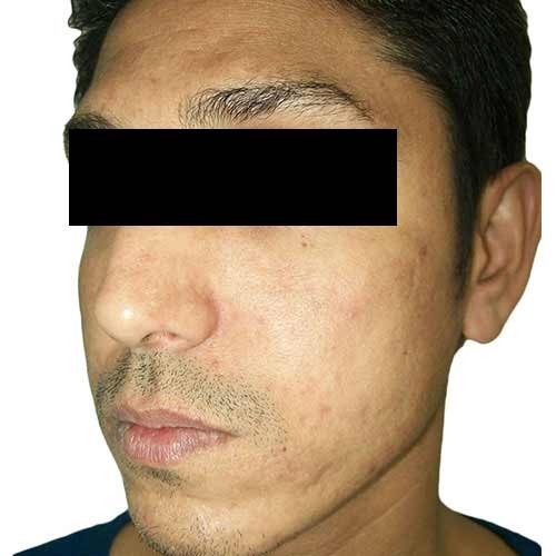 acne_scar_reduction_3_after