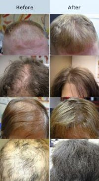 Advanced Skin Care Clinic Dealing With Hair Loss
