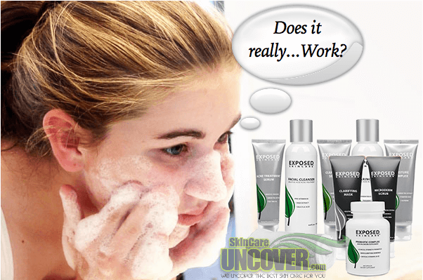 Does Exposed Skin Care Really Work