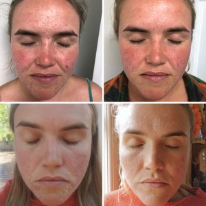 Chemical Peel Client Photo 2
