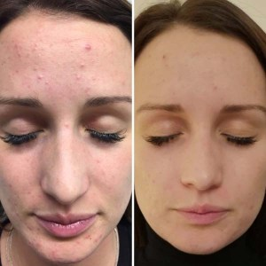 Chemical Peel Client Photo 4