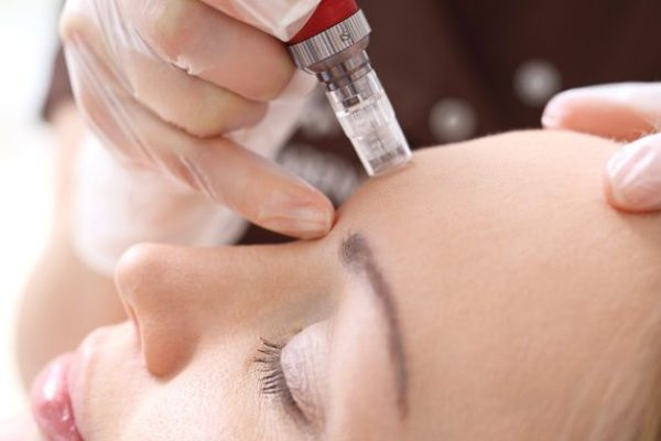 Advanced Micro Needling from Skin Confidence Pro