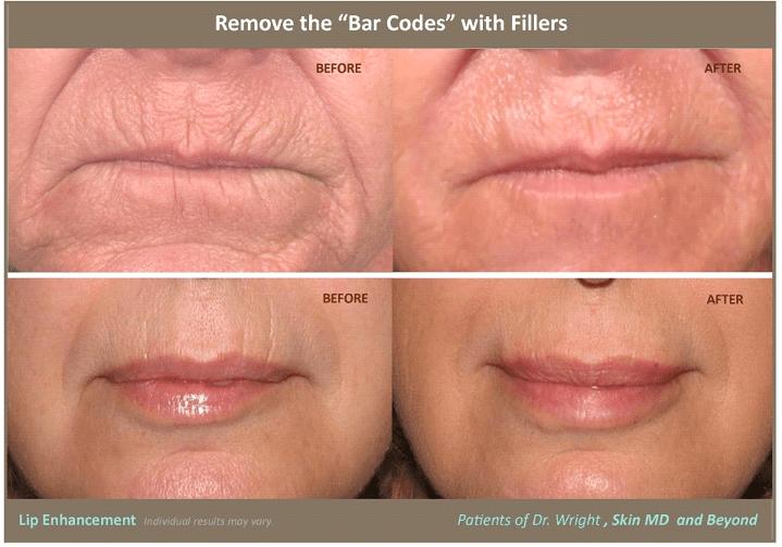 Care Natural Lines Top Skin
