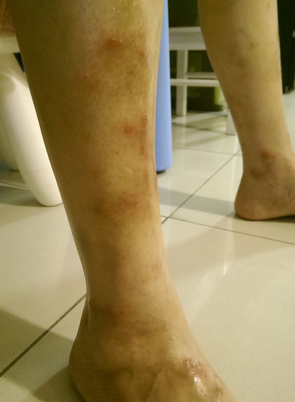eczema shin topical steroid addiction