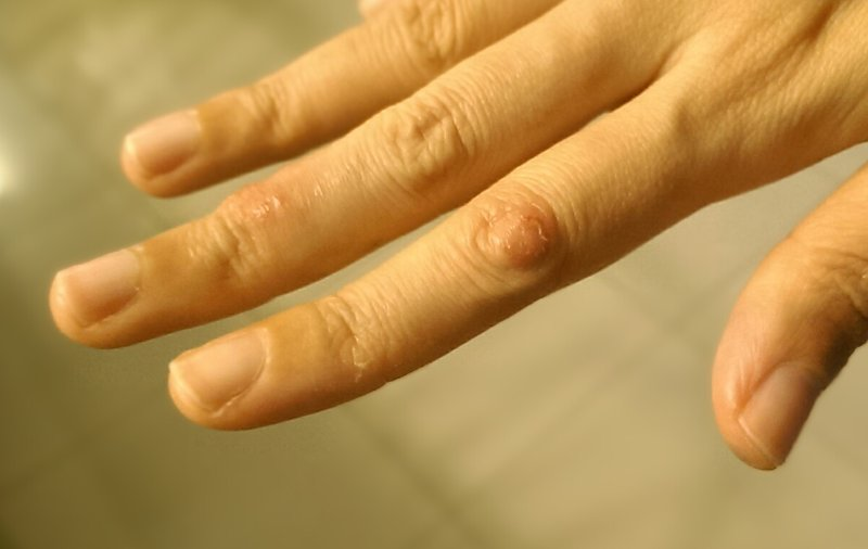 eczema knuckles topical steroid addiction