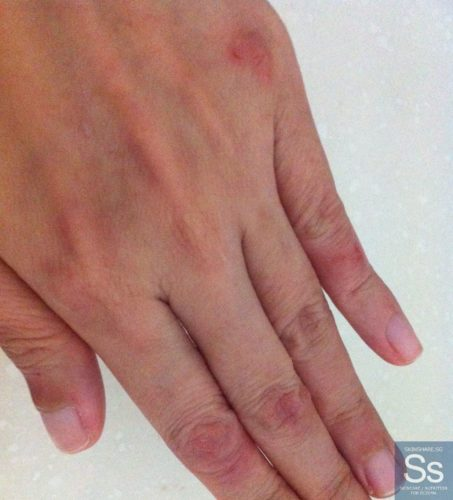 What Causes Hand Blisters? - Skinshare.sg