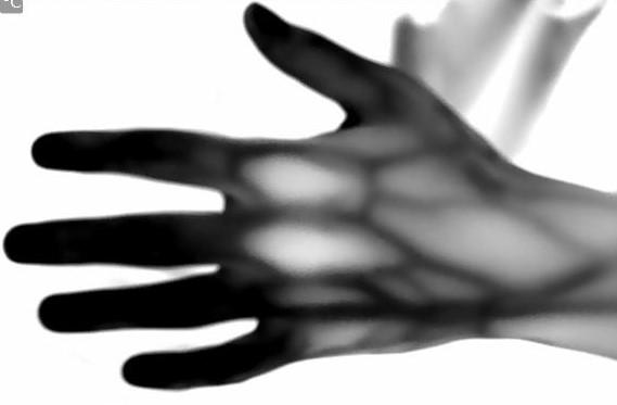 Skins IR - Medical - Research