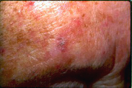 actinic keratosis skin lesions above the eye