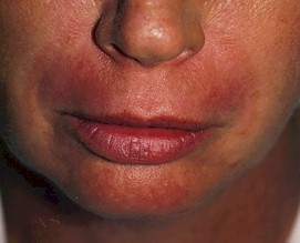 laser skin resurfacing of the lip-after photo