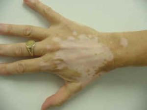 vitiligo lightened skin patch on the hand