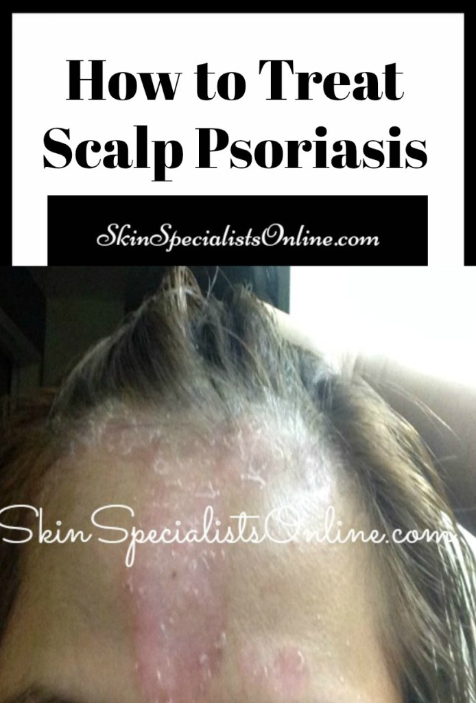 How to treat scalp psoriasis. Dermatologist tips for hair diseases