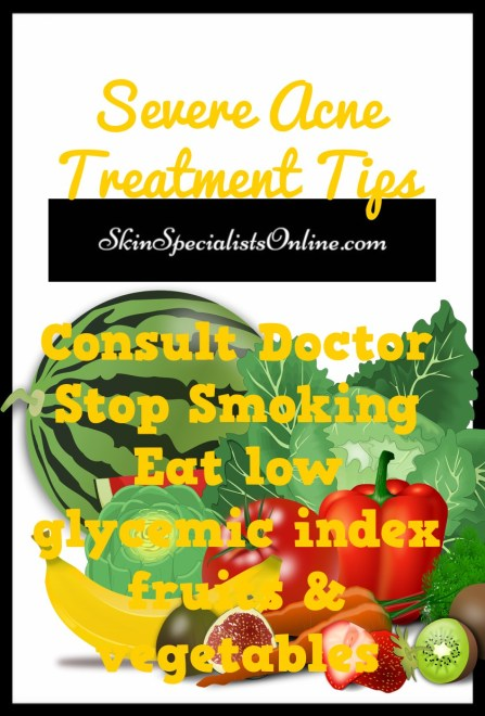 severe acne treatment tips