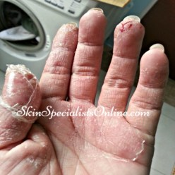hand irritant contact dermatitis
