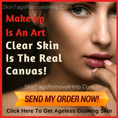 How To Prevent Skin Tags -Best Seller Of The Week - Skintagsremovalhelp.com