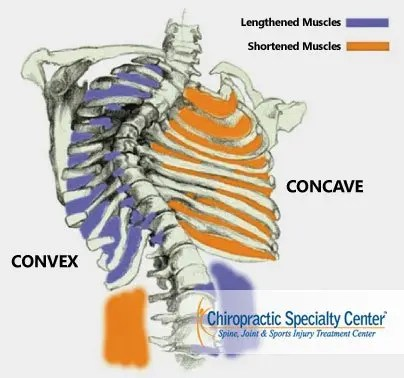 Concave and Convex Aspects of Scoliosis Treatment in Malaysia