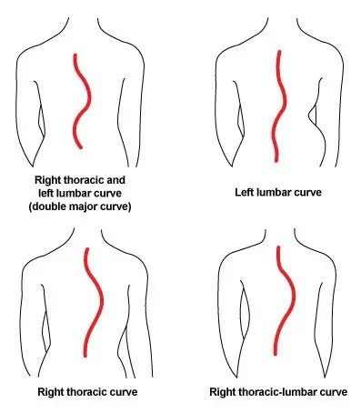 Curves: Lordosis, Kyphosis, and Scoliosis