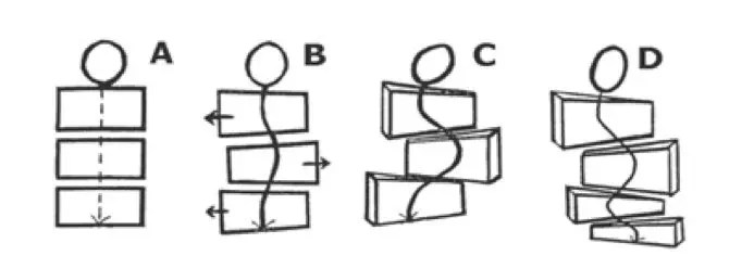 Three-Dimensional Aspects of Scoliosis
