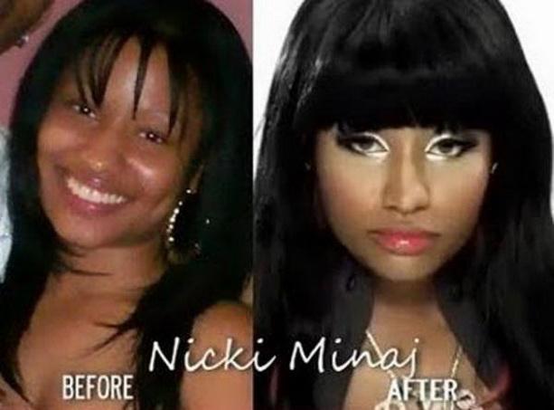 Ники Минаж до и после