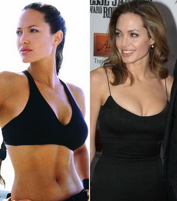 Анджелина Джоли до операци