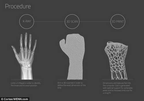 Процедура создания экзоскелета