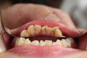 misaligned teeth before invisalign
