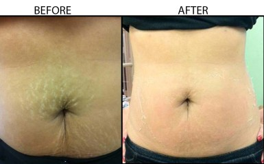 Stretch Marks-beforeAndafter1