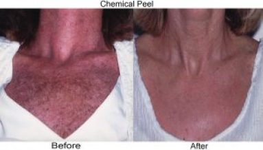 chemical peel - chest before and after