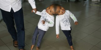 Hungarian doctors separate Bangladeshi twins joined at head